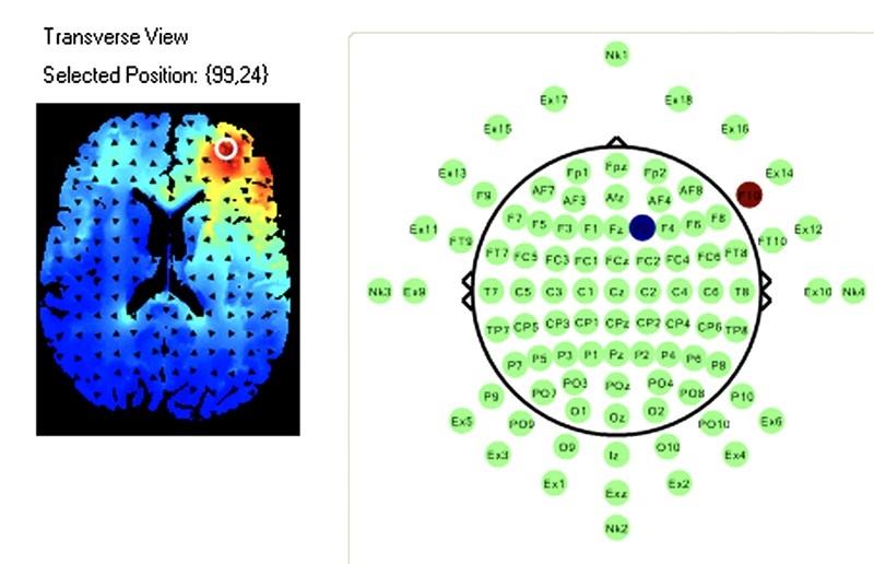 AgeMeter Stretch Goal fNIRS Scan Image