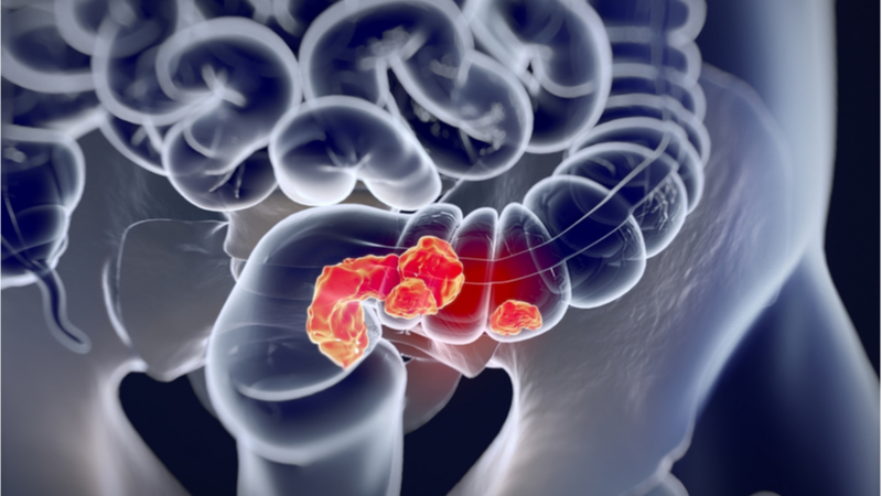 An image of colorectal cancer.