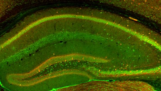Mouse Brain Internal